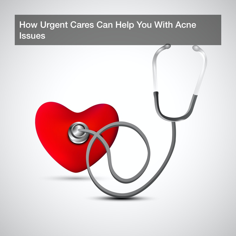 How Urgent Cares Can Help You With Acne Issues